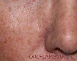 пигментацией кожи лица