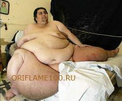 Ожирение это проблема